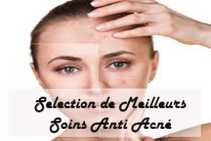 selection de meilleur soin anti acné
